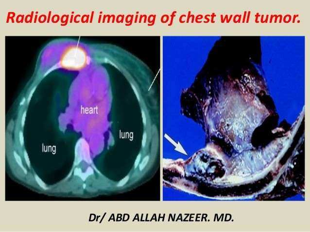 Presentation1 radiological imaging of chest wall tumour