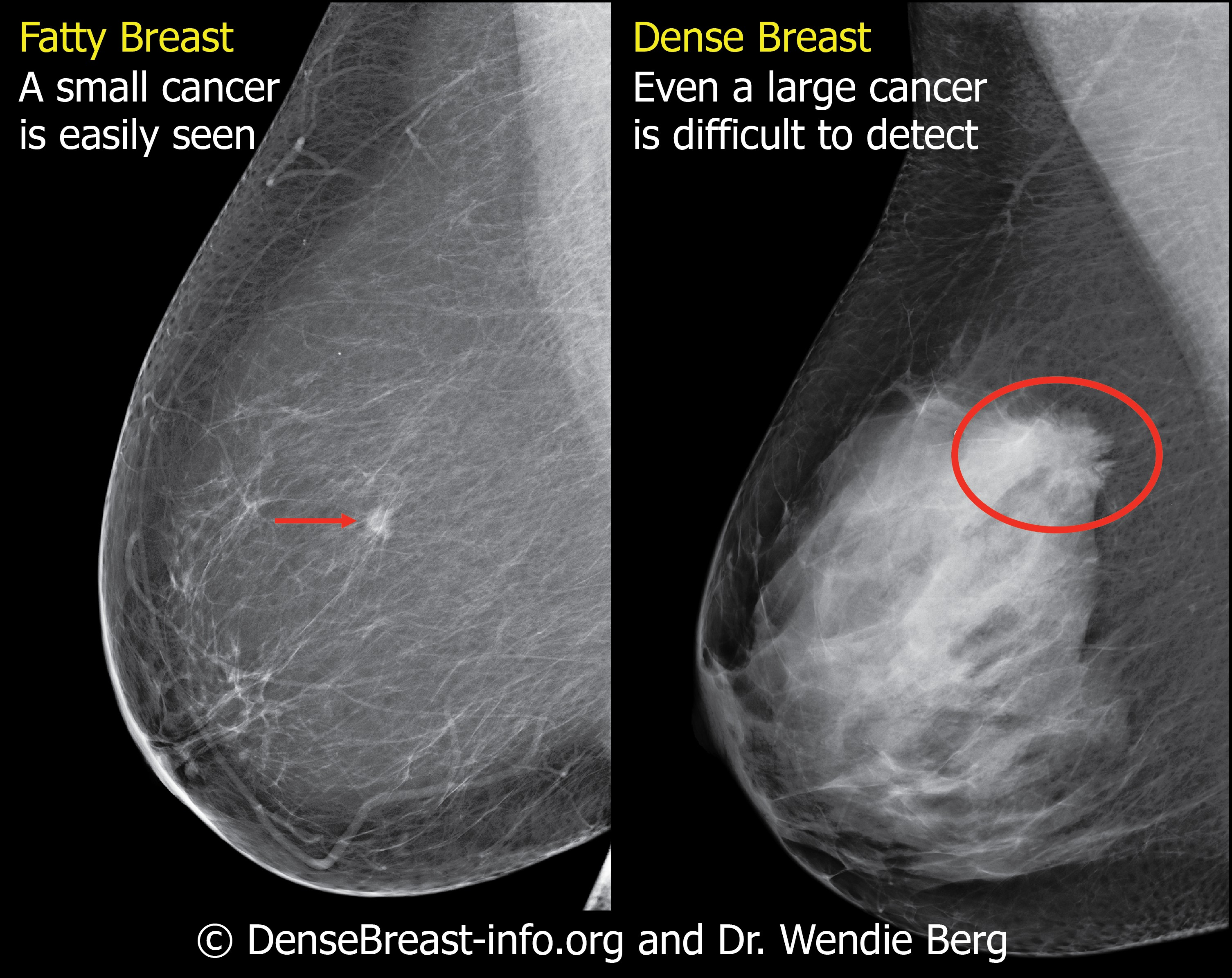 Why breast density matters on a mammogram